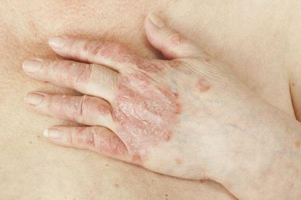 ruke-bolesti